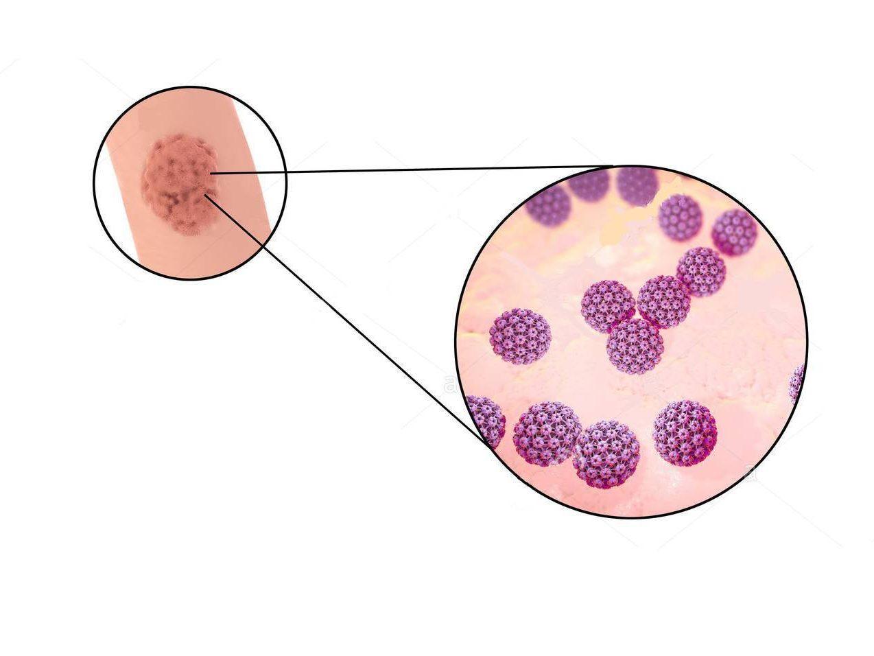 papilloma virus e tumore del pene